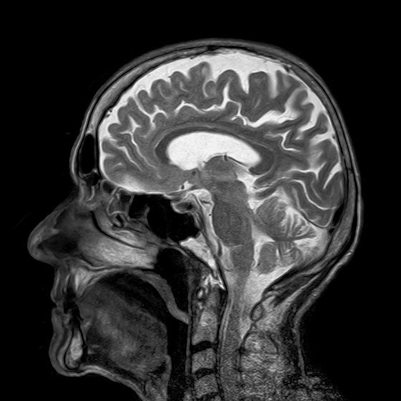 Снимок МРТ