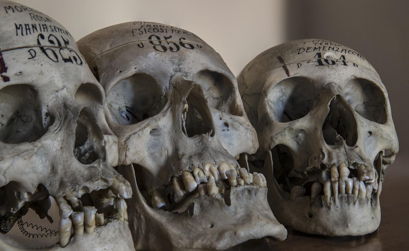черепа, кости
